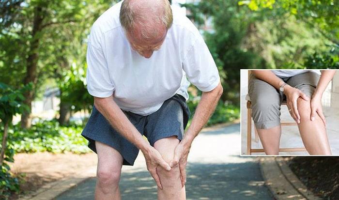 Biến dạng khớp là một trong những dấu hiệu nặng nhất của bệnh cơ xương khớp