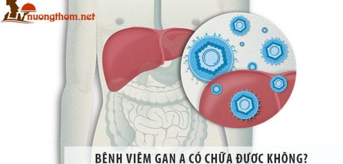 Viêm gan A có chữa được không? Cách chữa bệnh viêm gan A